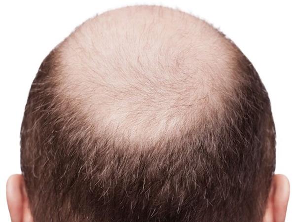 rambutbotak